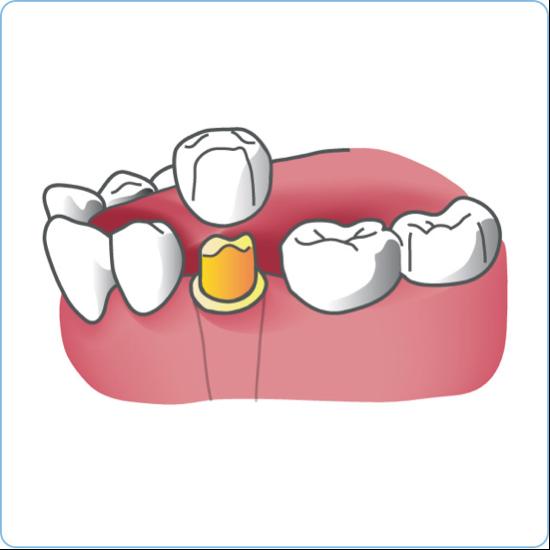kroon ter vervaningen tanden